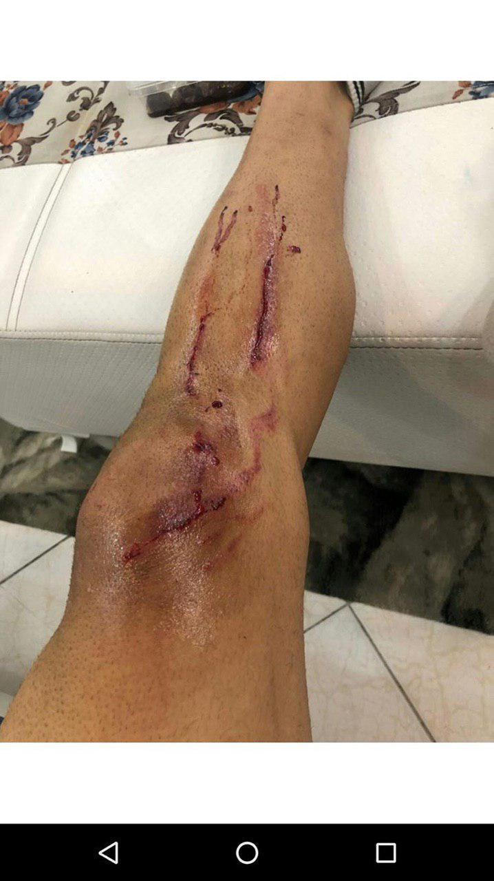 برزای با پای زخمی به خانه رفت