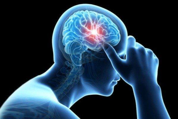 ارتباط آلودگی هوا و سکته مغزی، سردردها را جدی بگیرید
