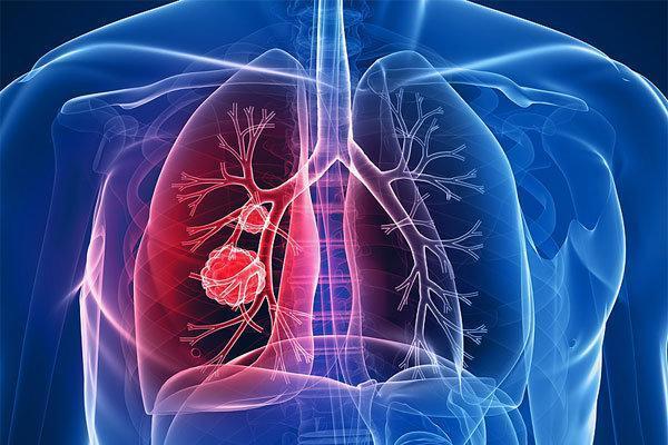 وقتی ماست سرطان ریه را کاهش می دهد!