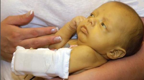 قطره زردی نوزاد؛ قطره بیلی ناستر چیست؟